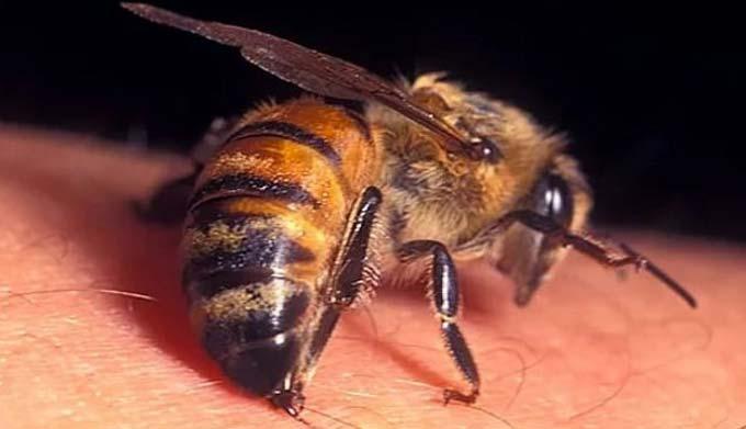 Как используются пчелы для лечения радикулита