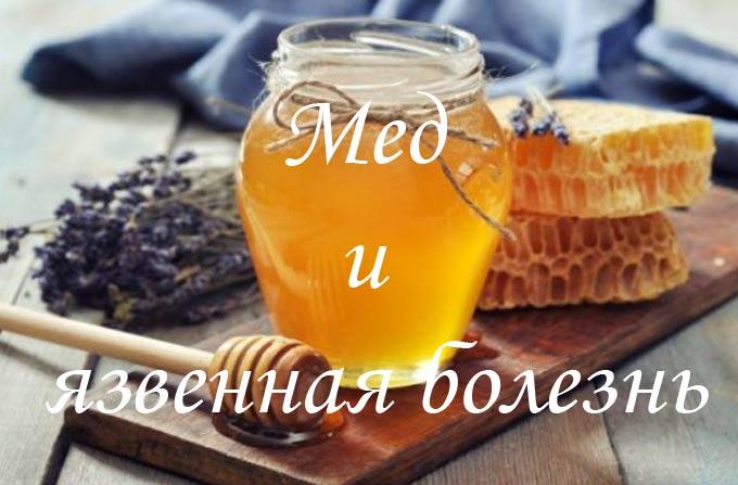 Особенности лечения язвенной болезни с помощью натурального меда