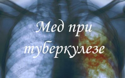 Как лечить туберкулез с помощью меда